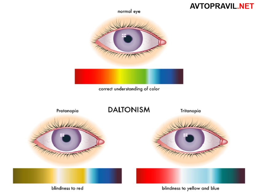 разновидности дальтонизма